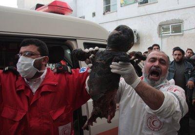 Child burend alive by White phosphor in Gaza